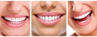 Co warto wiedzieć o wybielaniu zębów? cz. 2