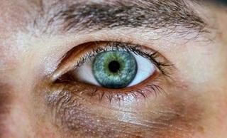 Worki i cienie pod oczami - łatwe triki, by je zwalczyć
