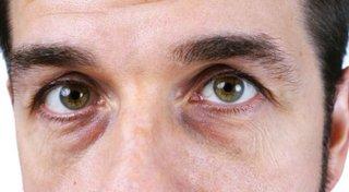Sińce pod oczami - przyczyny, choroby, których mogą być oznaką