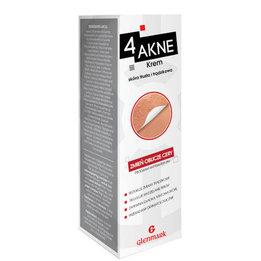 4 AKNE