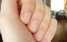 Rozdwajające się paznokcie