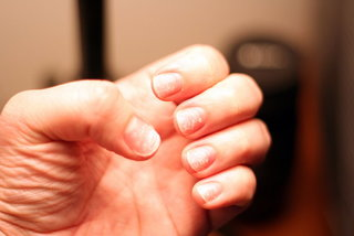 Słabe paznokcie