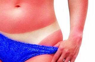 Oparzenia słoneczne