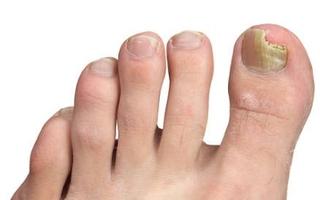 Grzybica paznokci