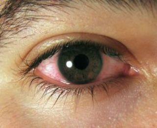 Zaczerwienione oczy